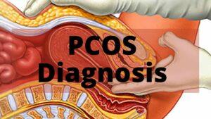 PCOS Diagnosis