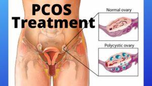 PCOS Treatment